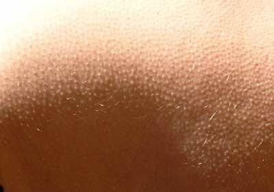 White Goose Bumps On Skin