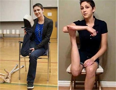 Mueve su pierna 180º como consecuencia del cáncer